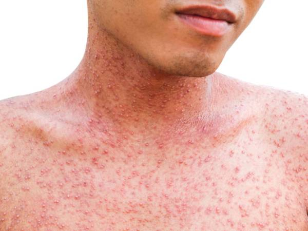 measles for FB
